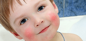 allergicheskij-dermatit-u-detej